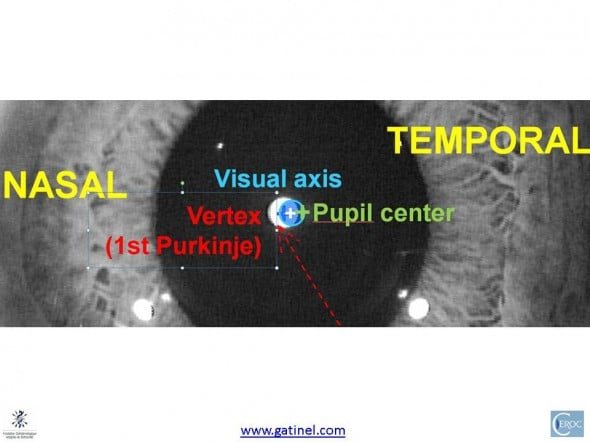 magnified view of the corneal intercepts of the line of sight visual axis corneal vertex