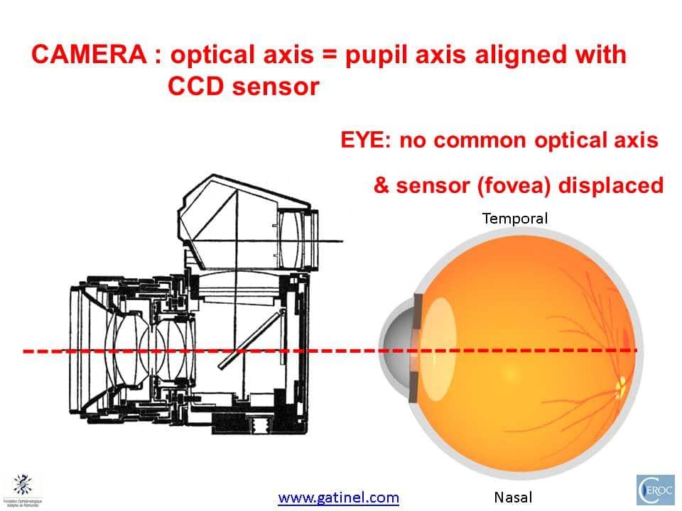 Centering corneal refractive surgery - doctor Damien Gatinel