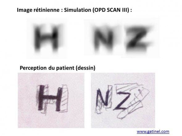 horizontal diplopia, double convolution vs design vision