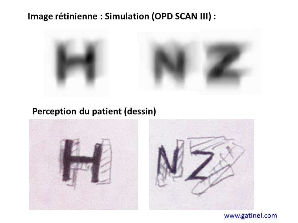 8318438874fc3 Images fantômes vision double - Docteur Damien Gatinel