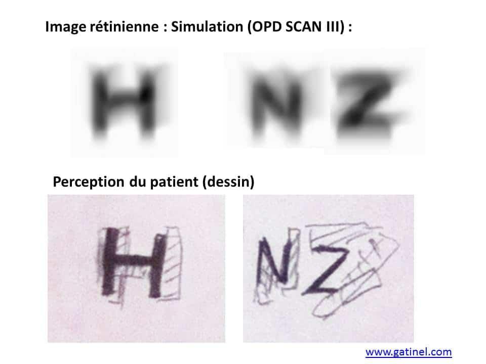 diplopie horizontale, convolution vs dessin vision double 3c886fbbf55d