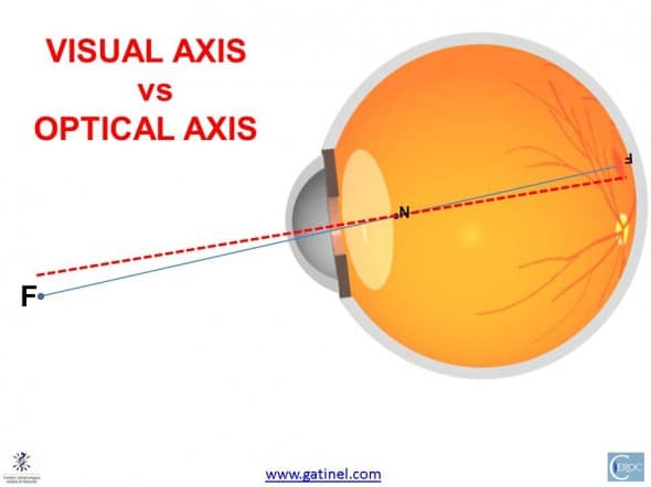 optical axis vs visual axis eye
