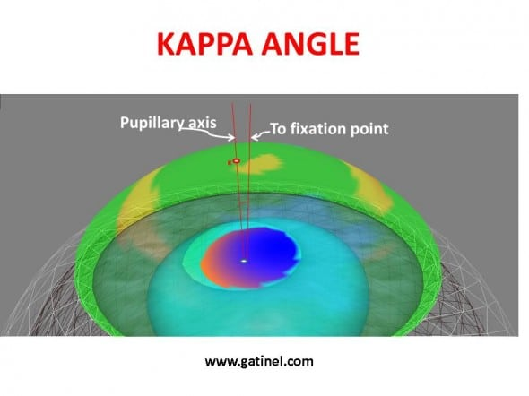 pupillary axis and kappa angle depicted in a 3D image