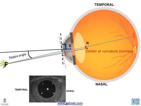 pupillary axis angle kappa