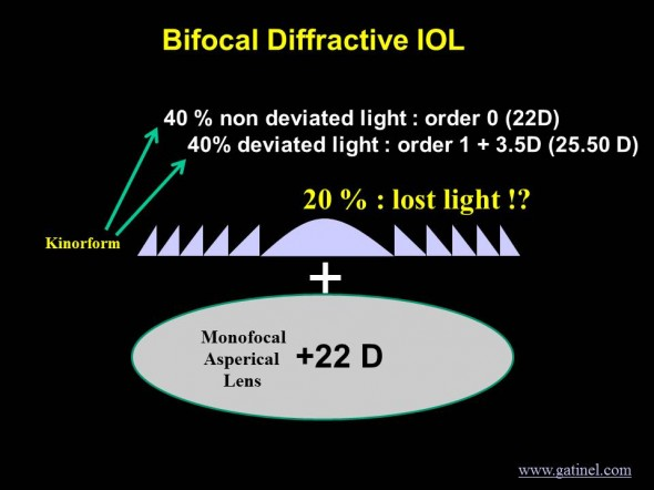 Bifocal IOL have kinoform and monofocal and lost energy