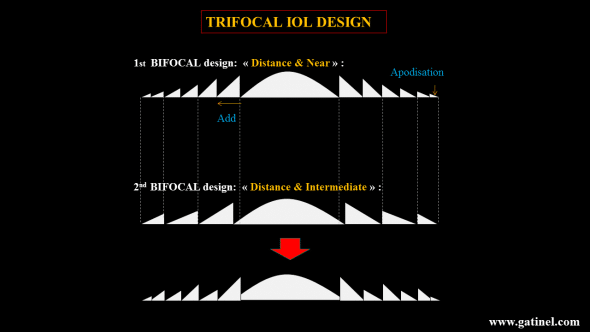 trifocal iol design