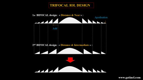 trifocal iol design