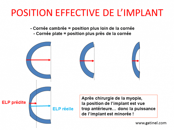 position effective de l'implant