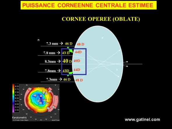 kératométrie cornée oblate