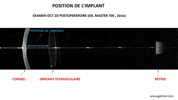 IOL master 700 position implant