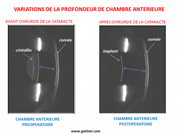 The anterior Chamber is deeper after the removal of the lens. The volume of the implant is much lower than that of the lens.