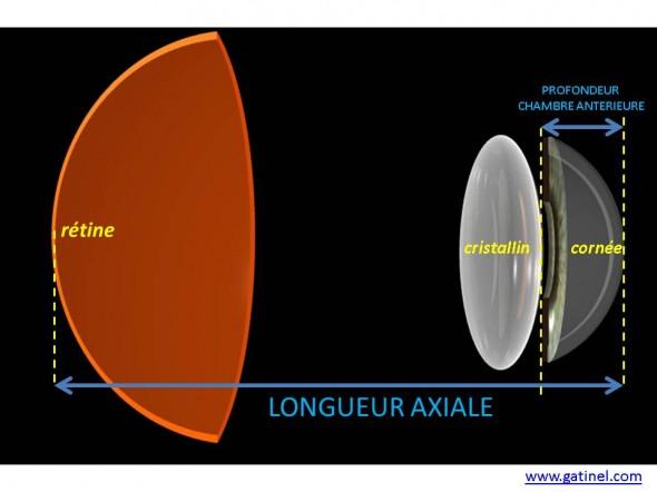 ocular biometry, length axial keratometry