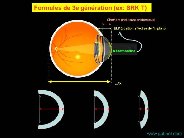 formule 3e génération calcul d'implant