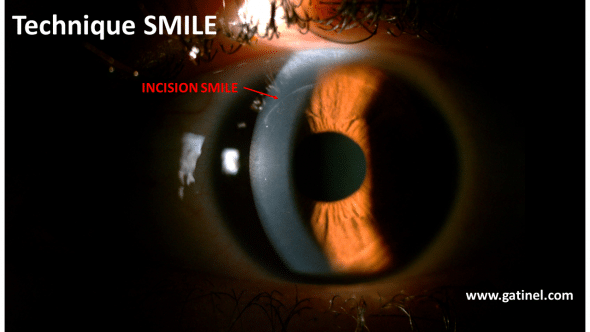 smile incision