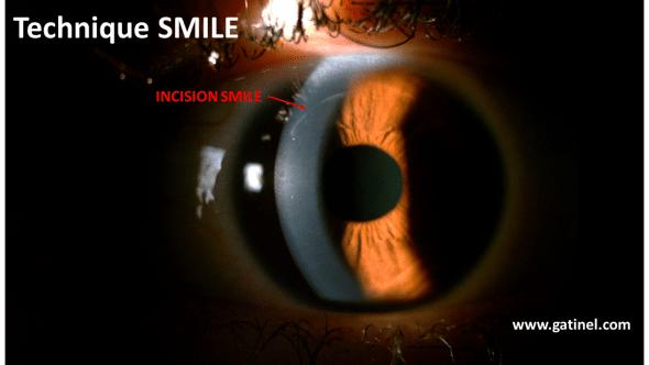 smile incision