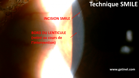 edge of the lenticule refractive smile