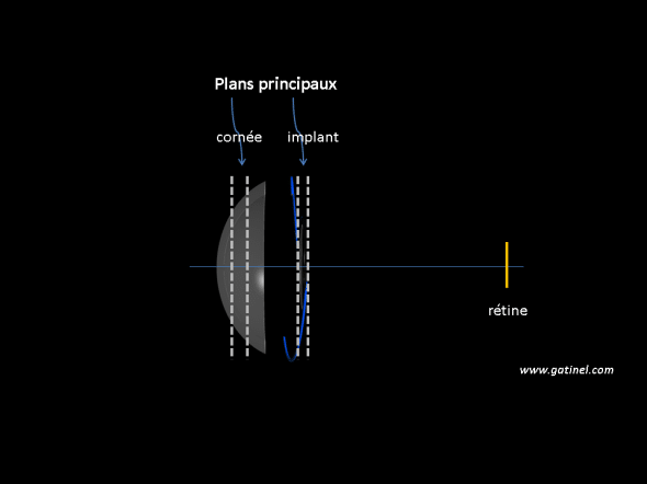 Formule calcul implant utilisant les plan principaux