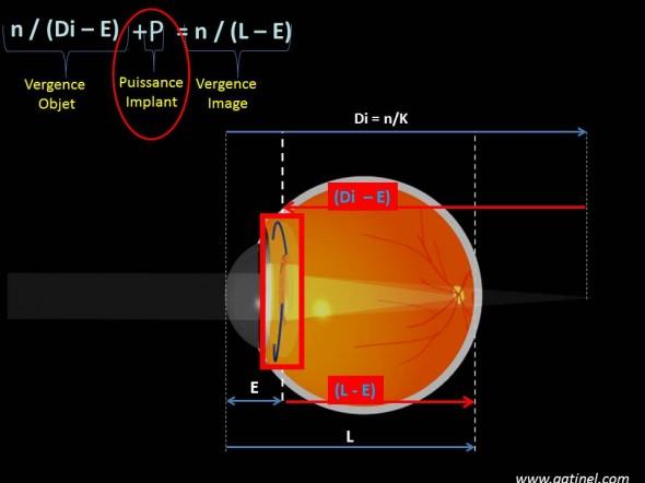 formule de vergence et calcul d'implant