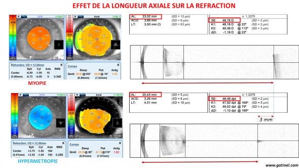 Longueur axiale oeil myope et hypermétrope