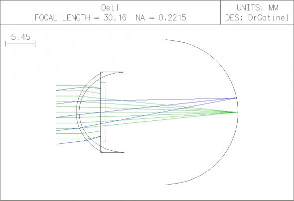 Oeil modèle implanté avec lentille de puissance nulle