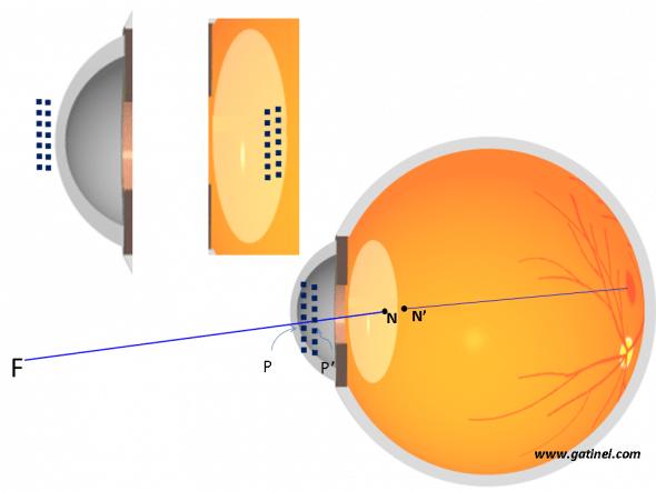 schéma des points principaux de l'oeil