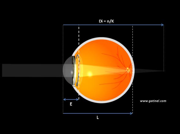 Représentation de la position de l'implant vis à vis de la cornée  et longueur axiale