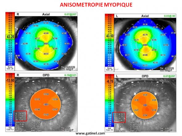 anisométropie myopie
