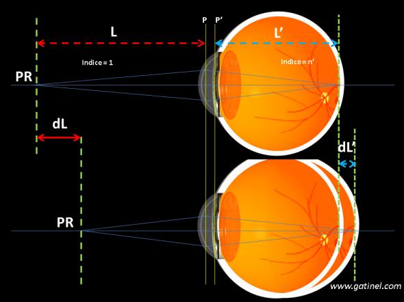 relation entre myopie axile et augmentation de la longueur axiale