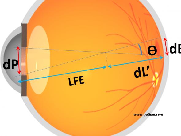estimation du diamètre de la tache de défocalisation