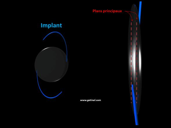 plan principaux des implants