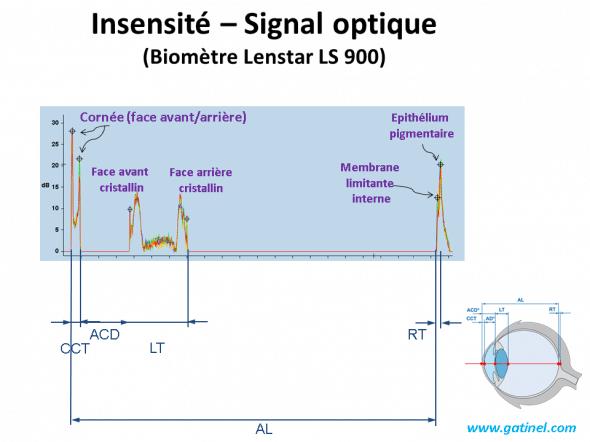 intensité du signal optique en biométrie oculaire anatomie et mesure des disances