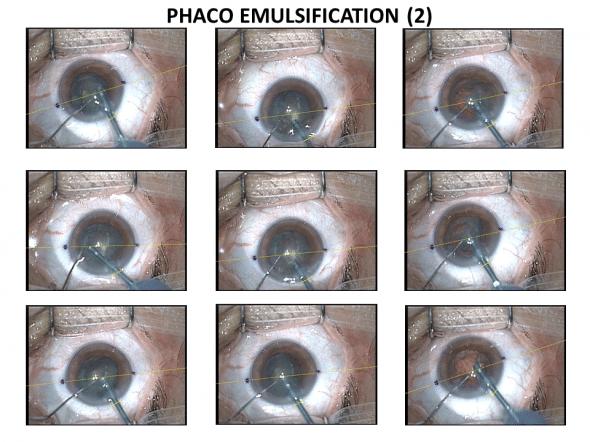 cracking du noyau et fragmentation par phaco émulsification