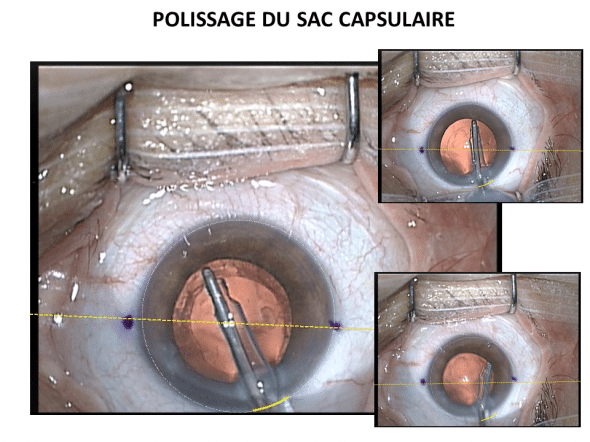 Manoeuvre de polissage interne du sac capsulaire