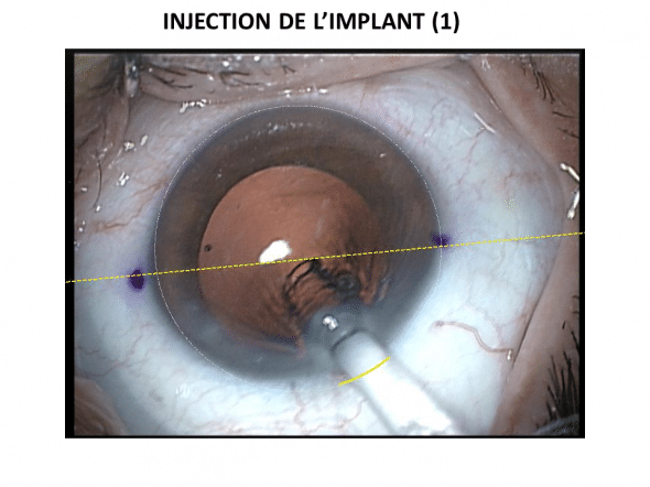 Injection de l'implant par l'incision principale