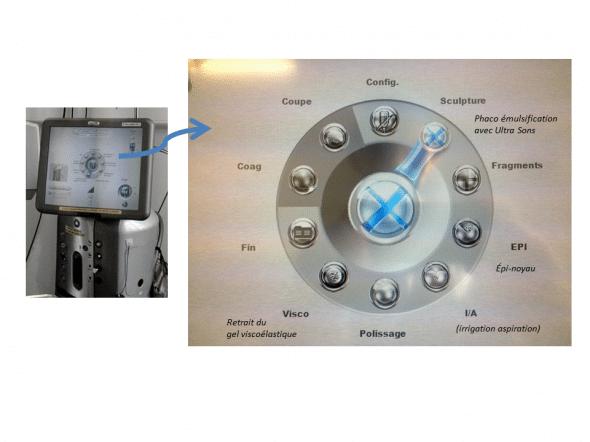 Ecran du phaco emulsificateur stellaris (bausch & lomb)