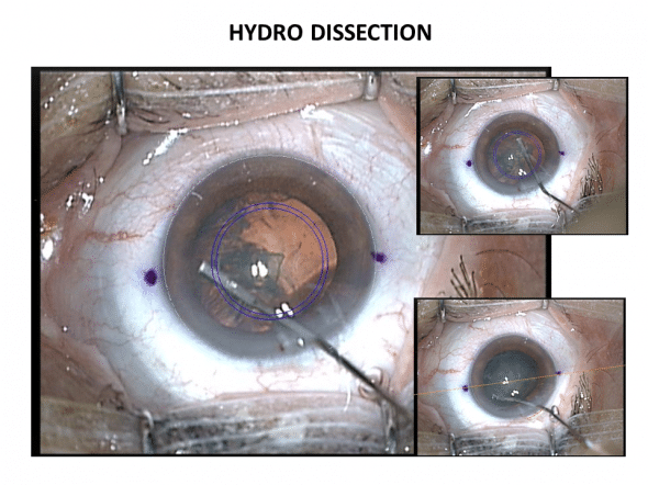 Réalisation de l'hydro dissection avec une canule adaptée