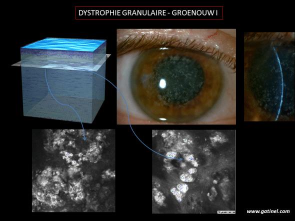 Aspect  biomicroscopique et en microscopie confocale de la dystrophie granulaire (Groenouw I). Les dépôts hyperréflexifs sont bien visibles. En microscopie optique, ces dépôts hyalins adopteraient une coloration rouge vif en utlisant un colorant dit «trichrome de Masson».
