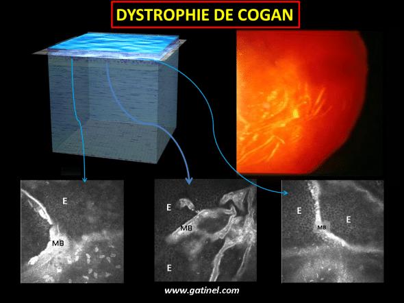 microscopie confocale dystrophie basale Cogan (HRT)