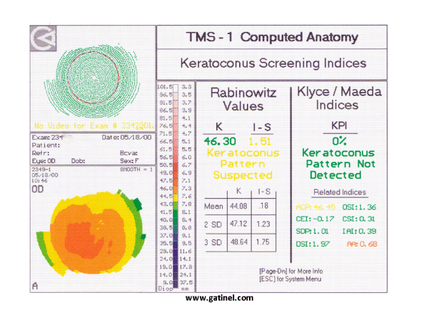 Screening criteria Rabinowicz Klyce and Maeda Keratoconus indices