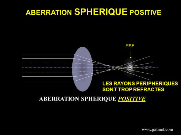 représentation schématique de l'aberration sphérique positive;