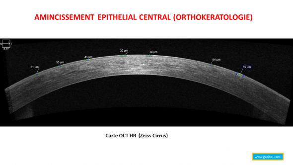 Coupe horizontale de la cornée en OCT haute résolution (Zeiss Cirrus) après port de lentilles Menicon Z Night pour la correction d'une myopie faible. L'appui nocturne avec la lentille provoque une redistribution de la couche épithéliale, qui s'amincit au centre. Cet aplatissement provoque une réduction de la courbure centrale de la cornée (aplatissement relatif, et réduction de la puissance optique du dioptre cornéen).
