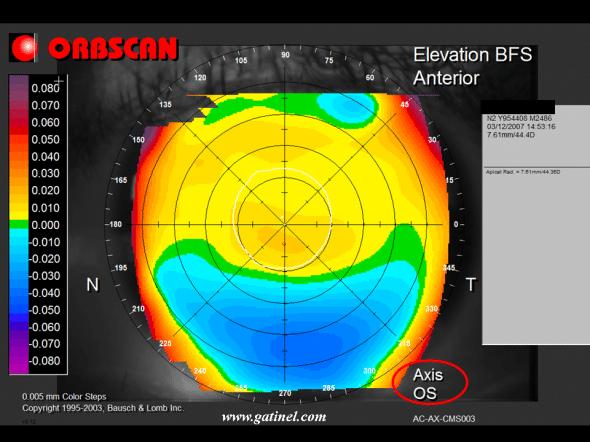 asymétrie cornéeenne elevation : utilisation du mode axis