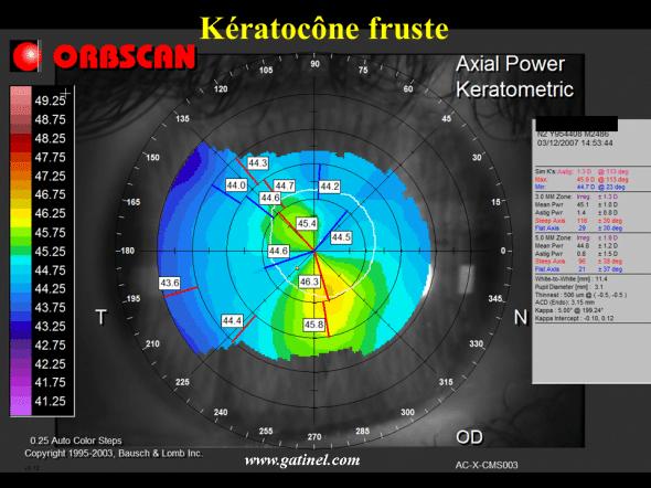 asymétrie cornéenne kératocone fruste et anomalie de type SRAX