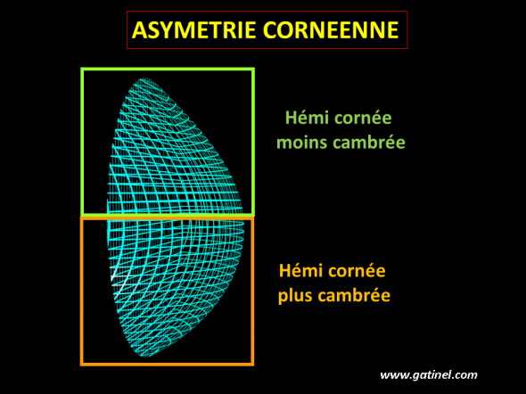 Asymétrie de la cornée