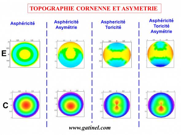 asymétries cornéeennes, toricité, asphéricité: comparaison entre les cartes de courbure élévation