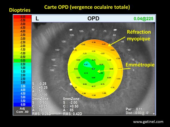 carte OPD aberrations sphériques post chirurgie réfractive