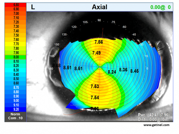 map topographical of corneal astigmatism direct