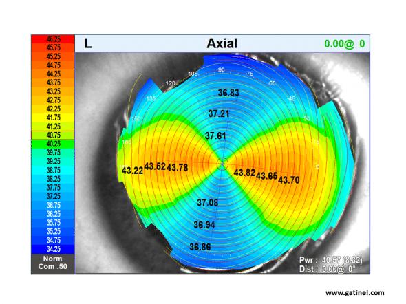 carte topographique axiale astigmatisme inverse