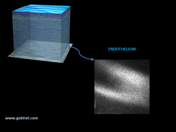 cornée HRT microscopie confocale aspec de l' endothélium