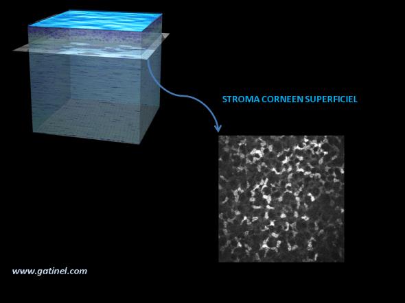 cornée HRT microscopie confocale : aspect du stroma superficiel